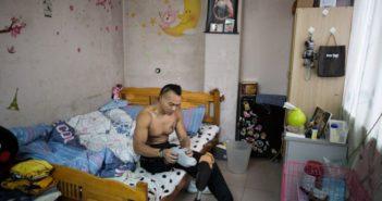 one-legged man sitting on a bed