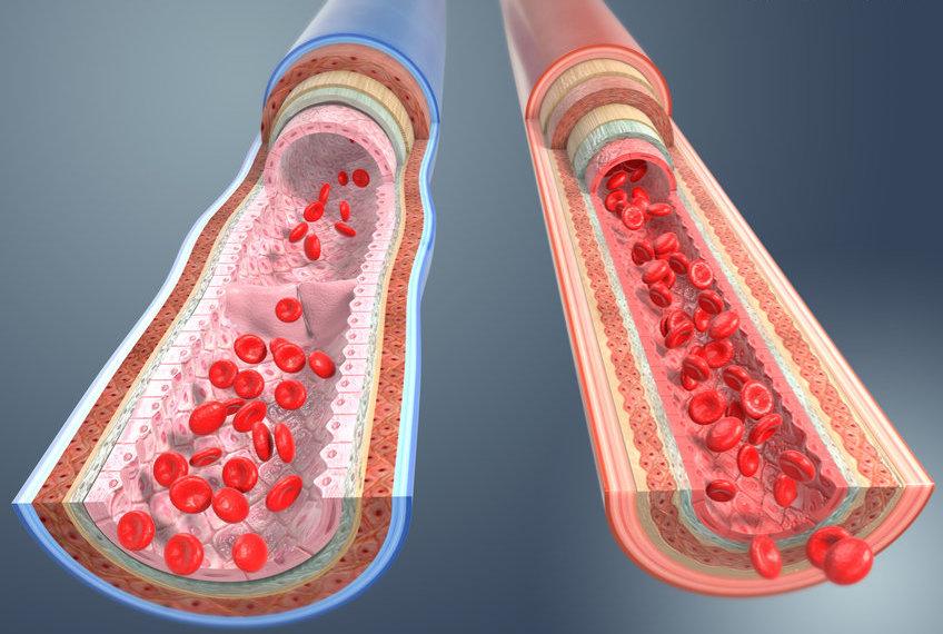 瑞士科学家开发出血管机器人
